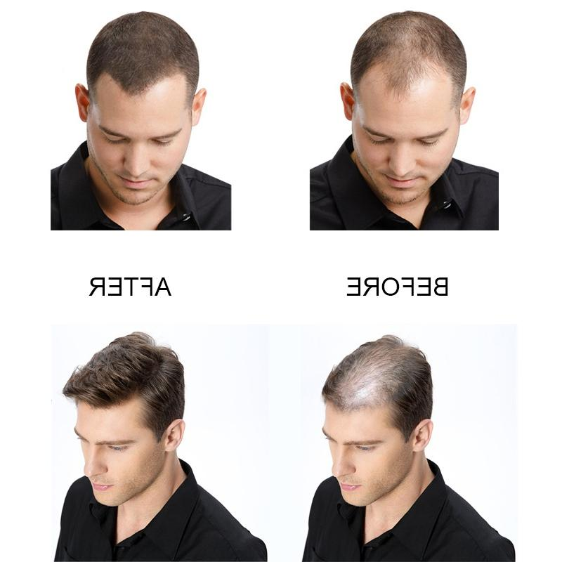 Women Men Natural Root Cover Thickening Building <font><b>Hair</b></font> Loss