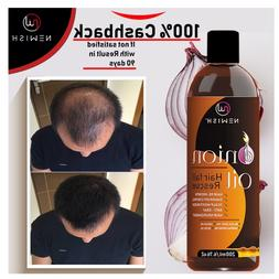 Red Onion Oil for Hair Regrowth Men and Women, 200ml Stop Ha